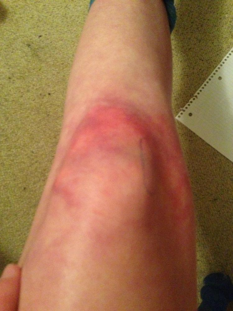 knee injury Knee ligament injuries: article by john miller what is a knee ligament a ligament is a short band of tough fibrous connective tissue composed mainly of long.
